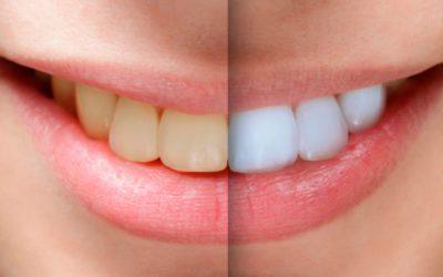 Clareamento dental: qual o melhor?