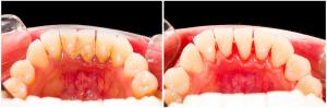 Tártaro dentário