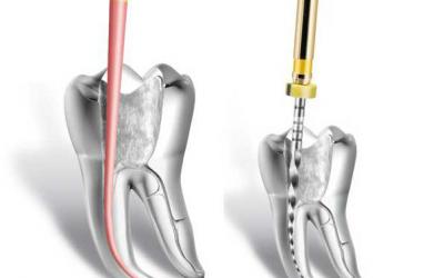 Endodontia Mecanizada