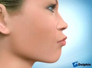 perfil protruso