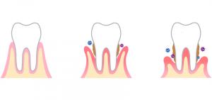 evolução da periodontite