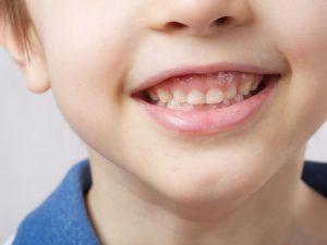 sorriso gengival infantil
