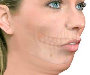 Retrognatismo Mandibular
